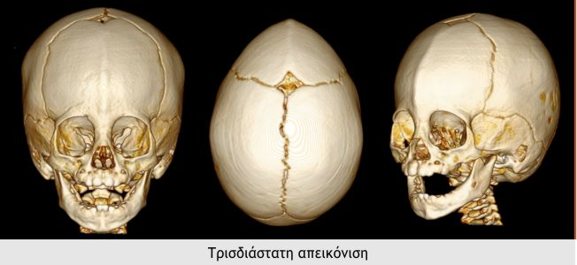 Trigonokefalia 2