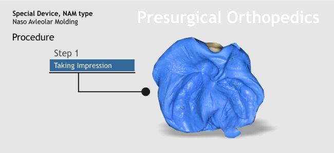 11-presurgical-orthopedics-1