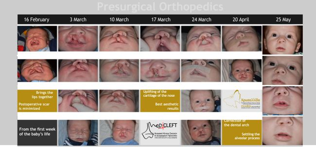 15-presurgical-orthopedics-5