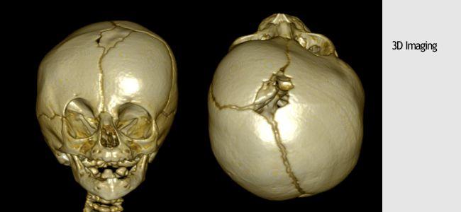 20-craniosynostosis-2