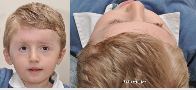 21-craniosynostosis-3