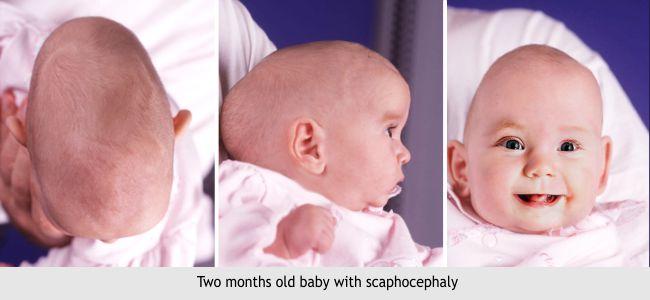 28-scaphocephaly-1