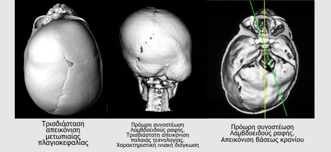 Plagiokefalia 1