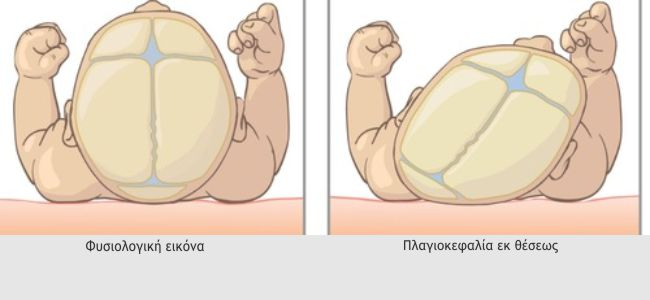 Plagiokefalia ek theseos 1