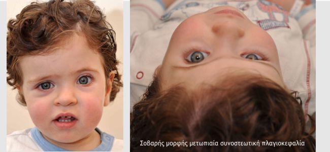 Plagiokefalia